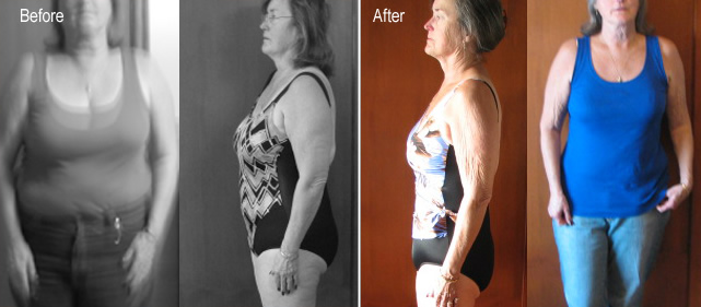 before after hcg chicago
